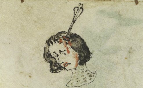 RHS Lecture: Dr Patricia Skinner,  'Better off dead than disfigured'? The challenges of facial injury in the premodern past'