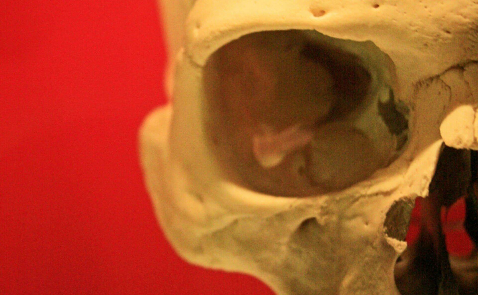 The Archaeology of Disease Documented in Skeletons